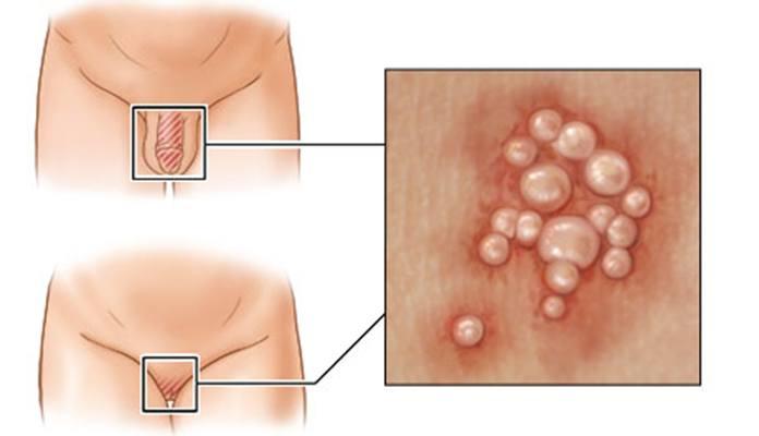Herpes Simplex Virus Hsv 1 Amp Hsv 2 New Life Ticket