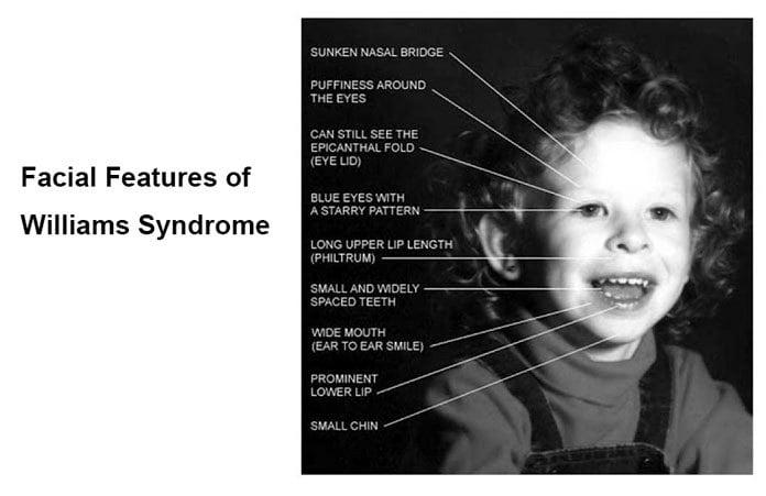 Williams Syndrome - Causes, Symptoms, Diagnosis ...